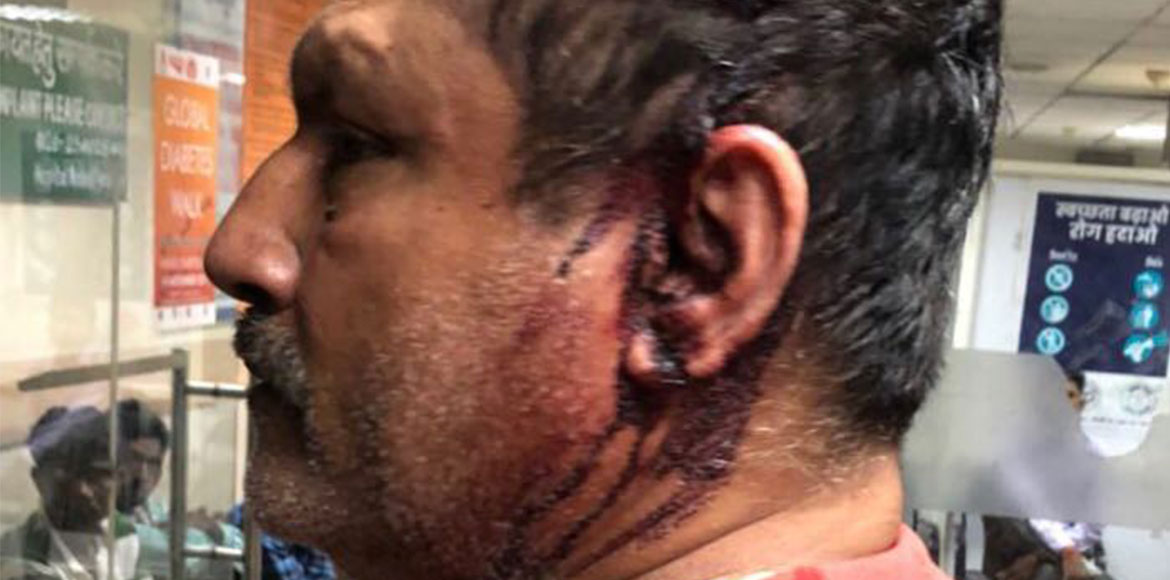 Singham brutally assaulted, Ghaziabad residents angry