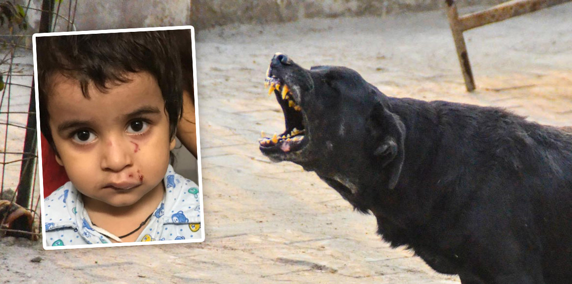 Two kids attacked by stray dogs in Noida's