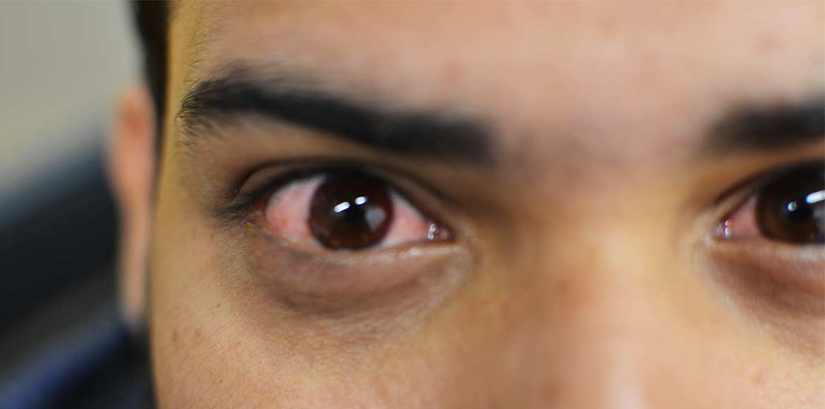 Suffering from dry eye syndrome? Blame it on polluted Delhi air