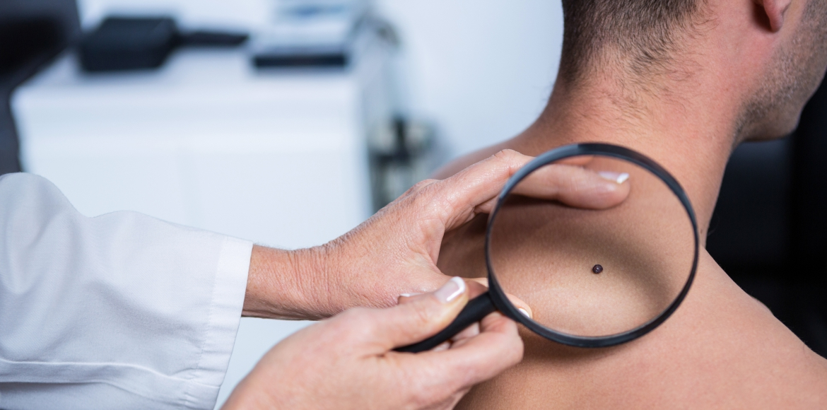 All you need to know about skin cancer