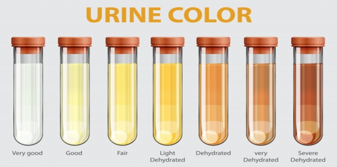 Is your urine telling you something?